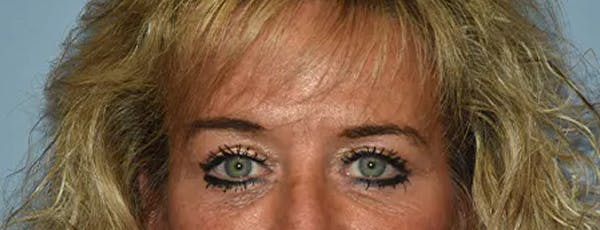 Eyelid Lift Gallery - Patient 17337876 - Image 2