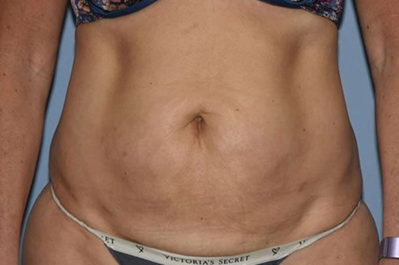 Tummy Tuck Gallery - Patient 14281233 - Image 1