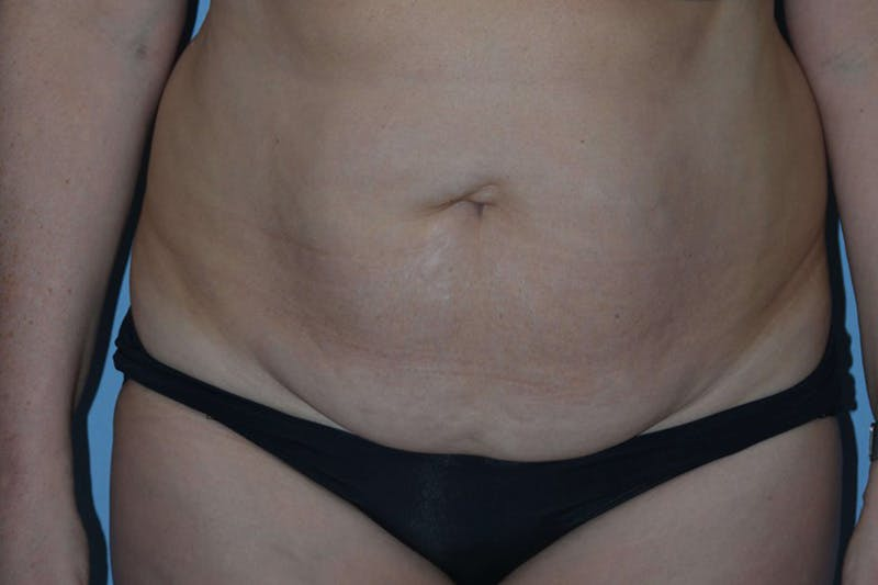 Tummy Tuck Gallery - Patient 14281270 - Image 1