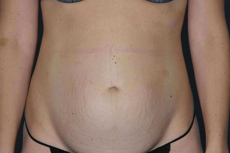 Tummy Tuck Gallery - Patient 14281284 - Image 1