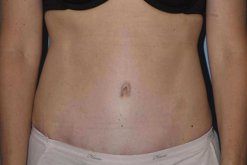 Tummy Tuck Gallery - Patient 14281284 - Image 2