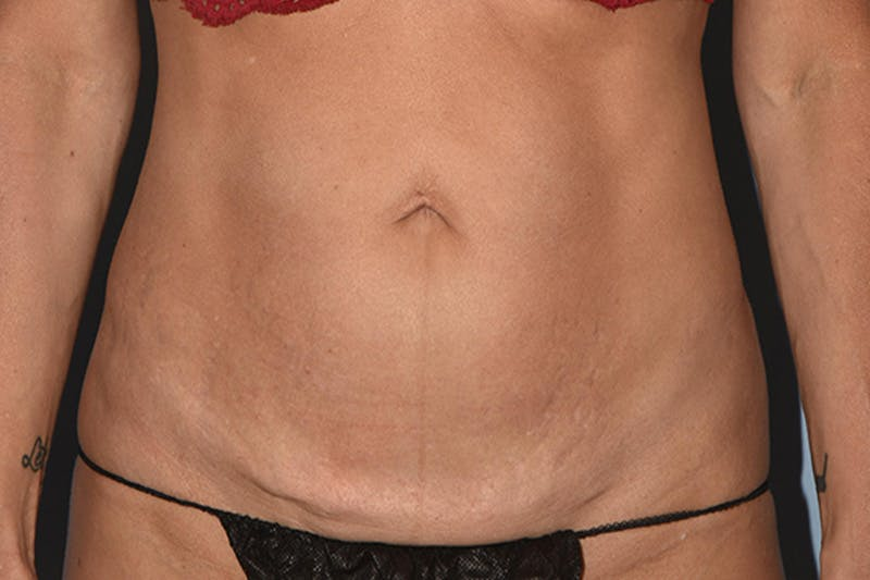 Tummy Tuck Gallery - Patient 17229331 - Image 1