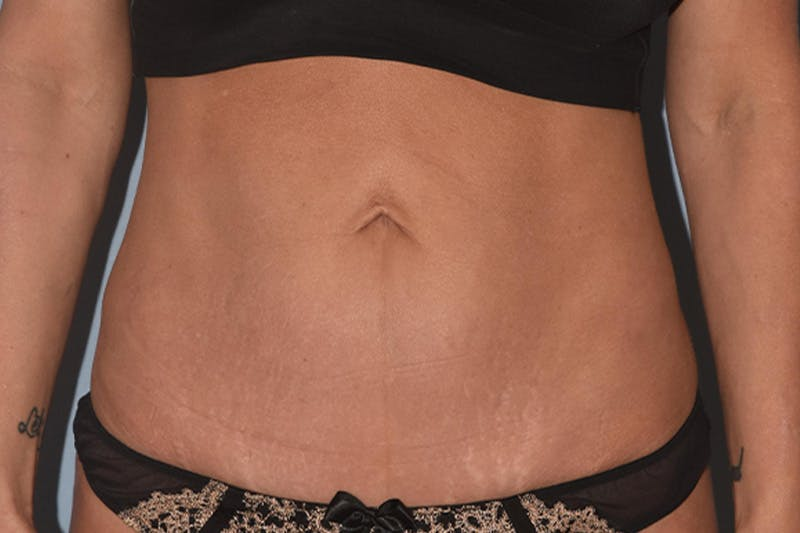 Tummy Tuck Gallery - Patient 17229331 - Image 2