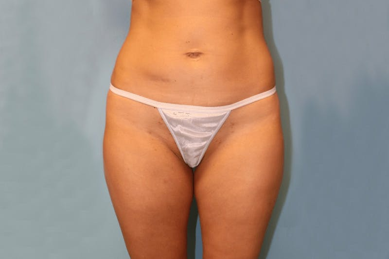 Liposuction Gallery - Patient 14281437 - Image 1