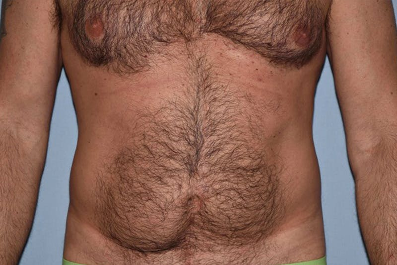 Liposuction Gallery - Patient 14281445 - Image 1