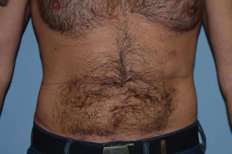 Liposuction Gallery - Patient 14281445 - Image 2