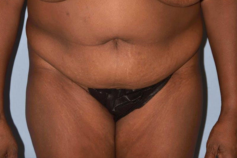 Liposuction Gallery - Patient 14281453 - Image 1