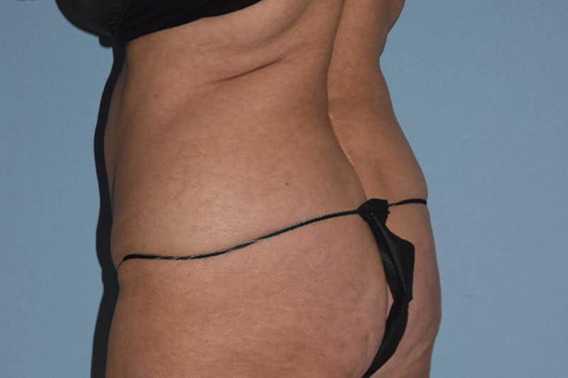 Liposuction Gallery - Patient 16555407 - Image 1