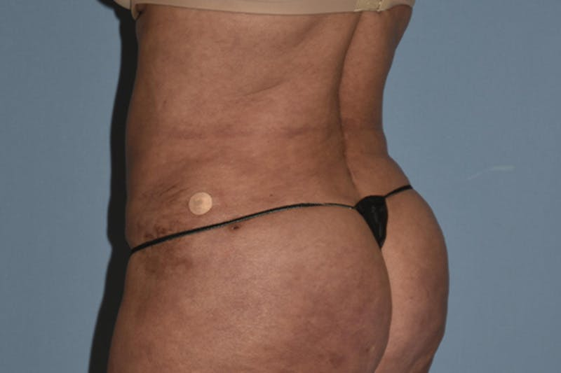 Liposuction Gallery - Patient 16555407 - Image 2