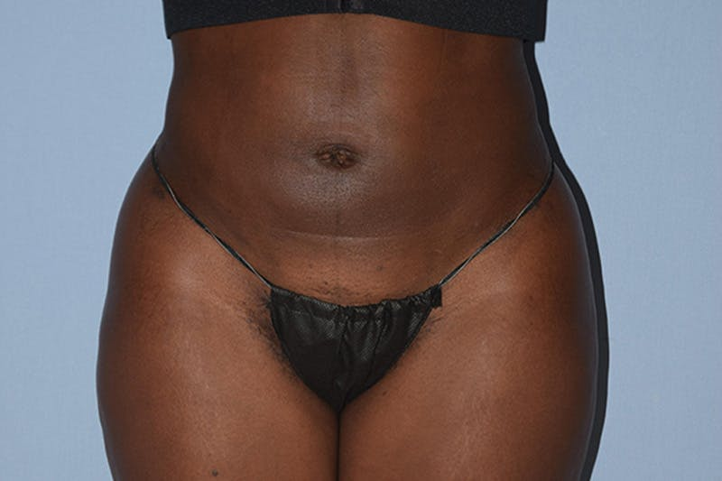 Liposuction Gallery - Patient 16555408 - Image 2