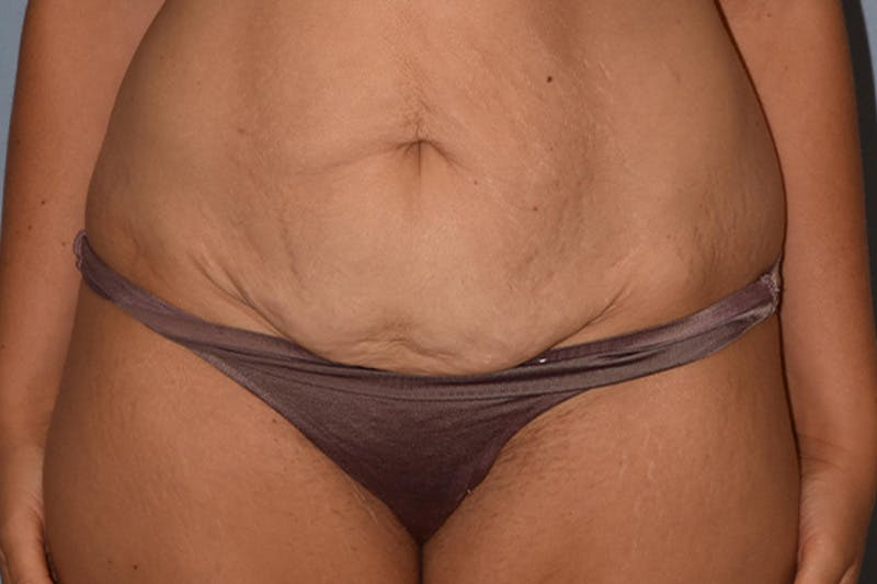 Liposuction Gallery - Patient 17336071 - Image 1