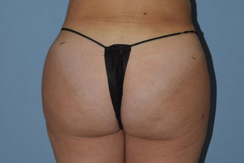 Brazilian Butt Lift Gallery - Patient 14281484 - Image 2