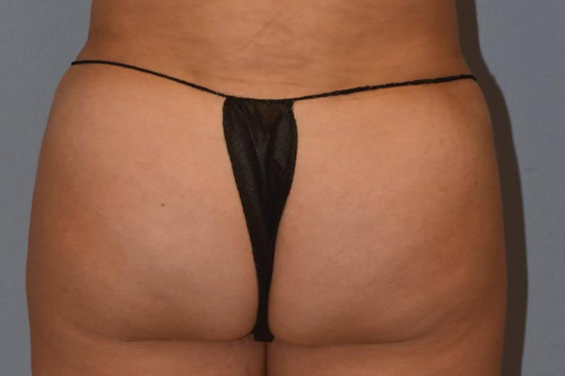 Brazilian Butt Lift Gallery - Patient 16508712 - Image 2