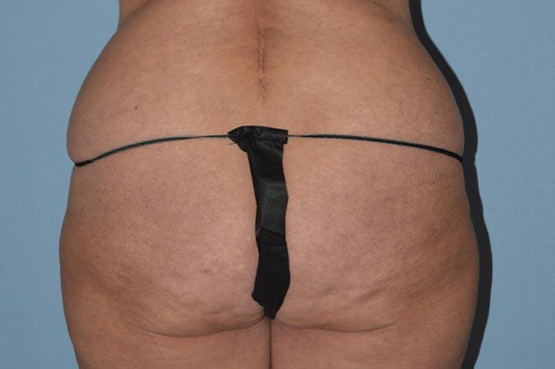 Brazilian Butt Lift Gallery - Patient 16560625 - Image 1