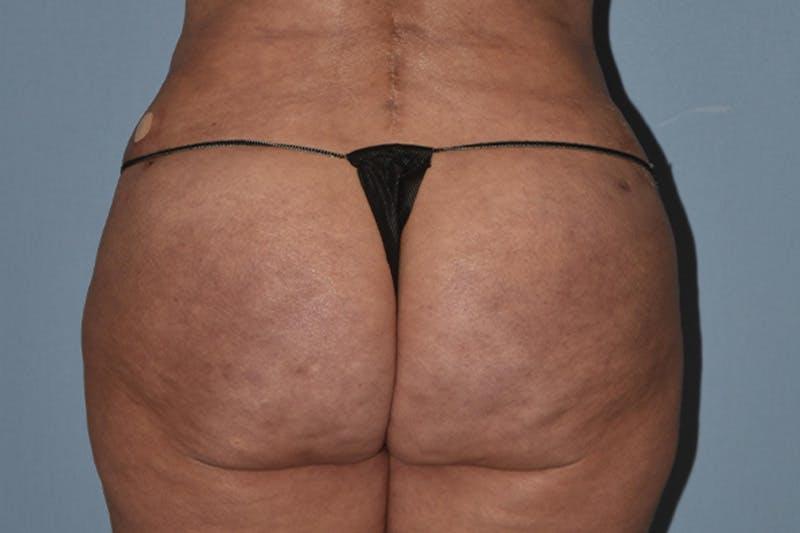 Brazilian Butt Lift Gallery - Patient 16560625 - Image 2