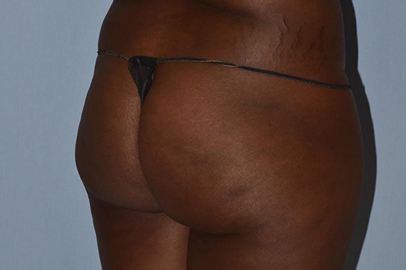 Brazilian Butt Lift Gallery - Patient 16560626 - Image 1
