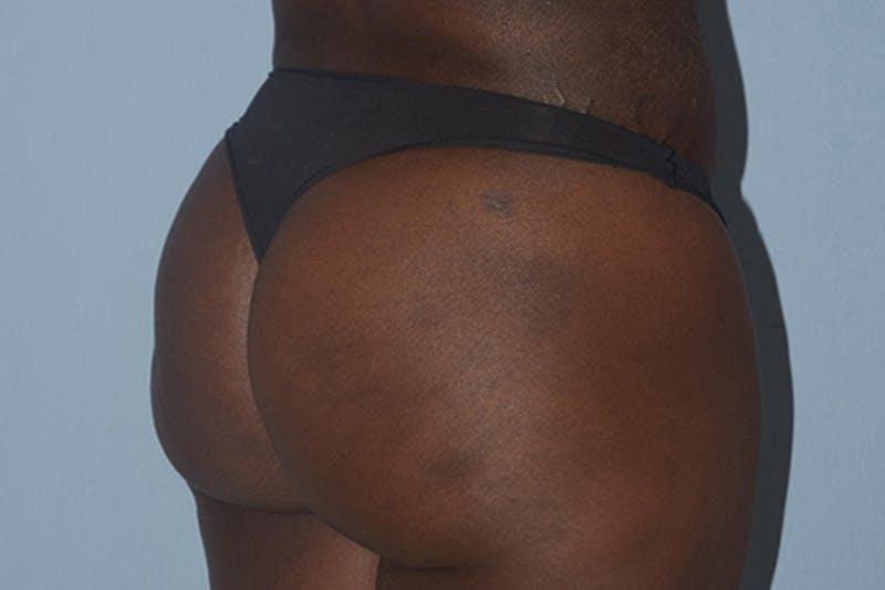 Brazilian Butt Lift Gallery - Patient 16560626 - Image 2