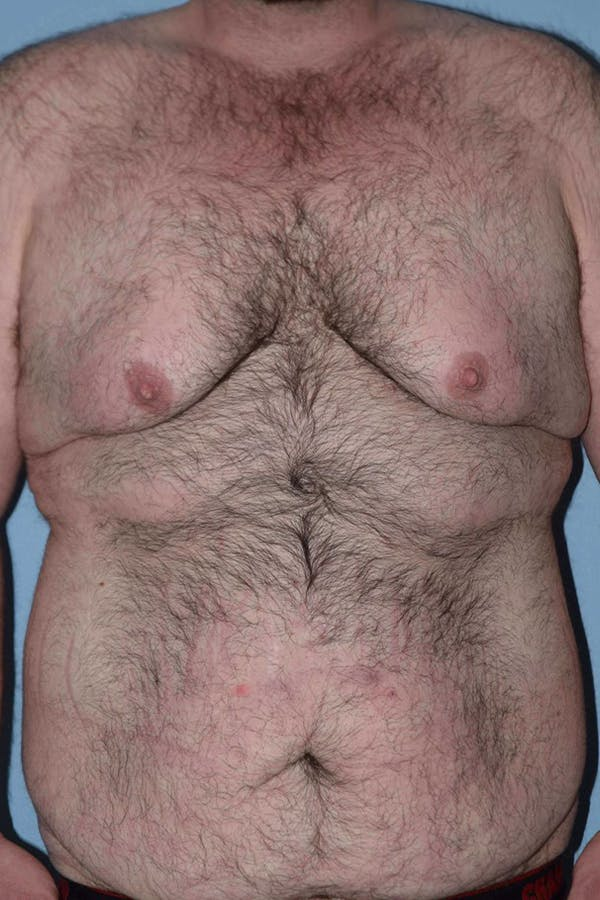 After Weight Loss Surgery Gallery - Patient 14281499 - Image 1