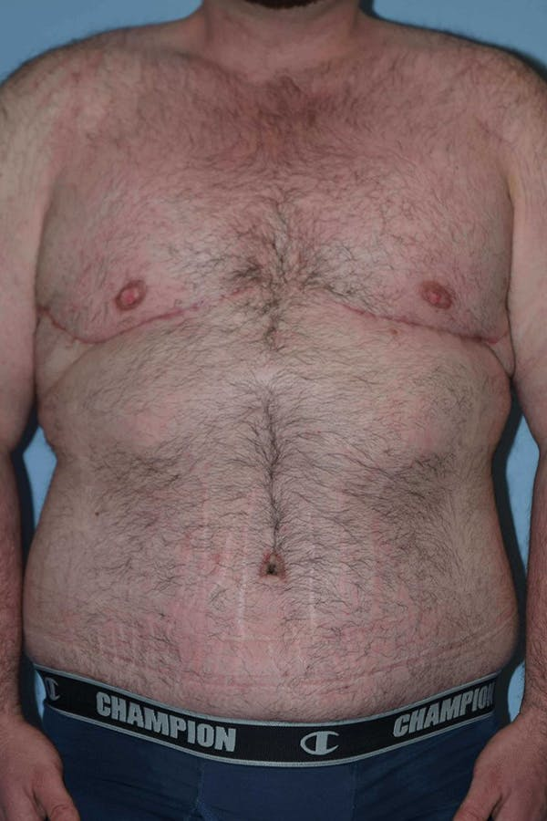 After Weight Loss Surgery Gallery - Patient 14281499 - Image 2