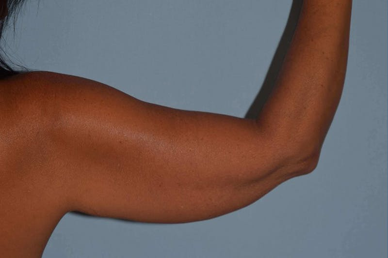 Arm Lift Gallery - Patient 14281510 - Image 1