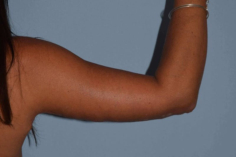 Arm Lift Gallery - Patient 14281510 - Image 2