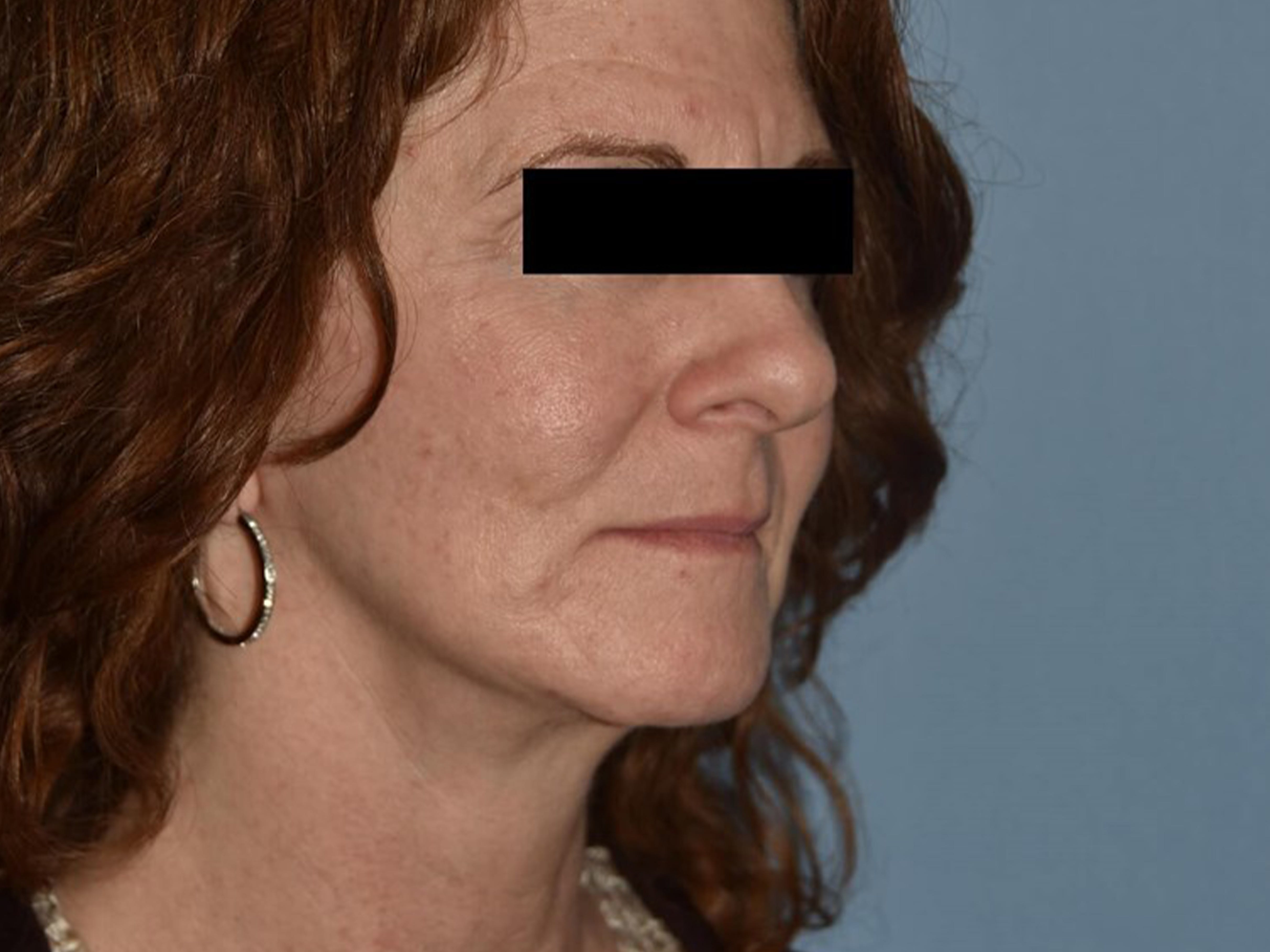 Facelift Gallery - Patient 14281770 - Image 2