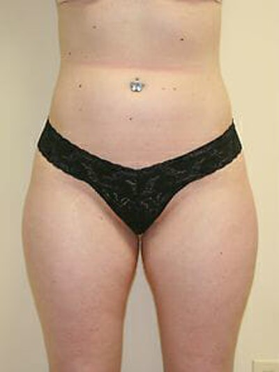 Female Liposuction Gallery - Patient 9605548 - Image 1