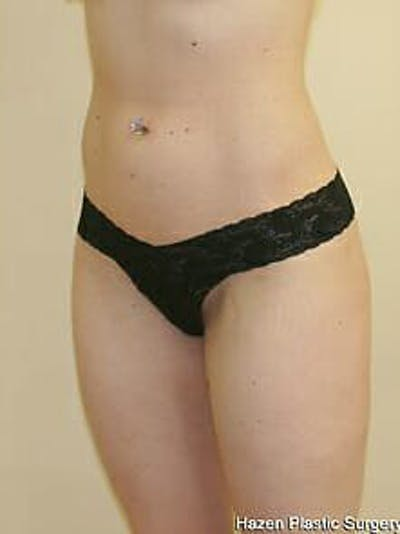 Female Liposuction Gallery - Patient 9605548 - Image 4