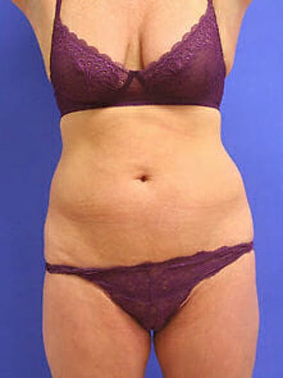 Female Liposuction Gallery - Patient 9605550 - Image 1