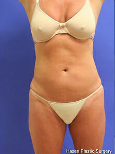 Female Liposuction Gallery - Patient 9605550 - Image 2