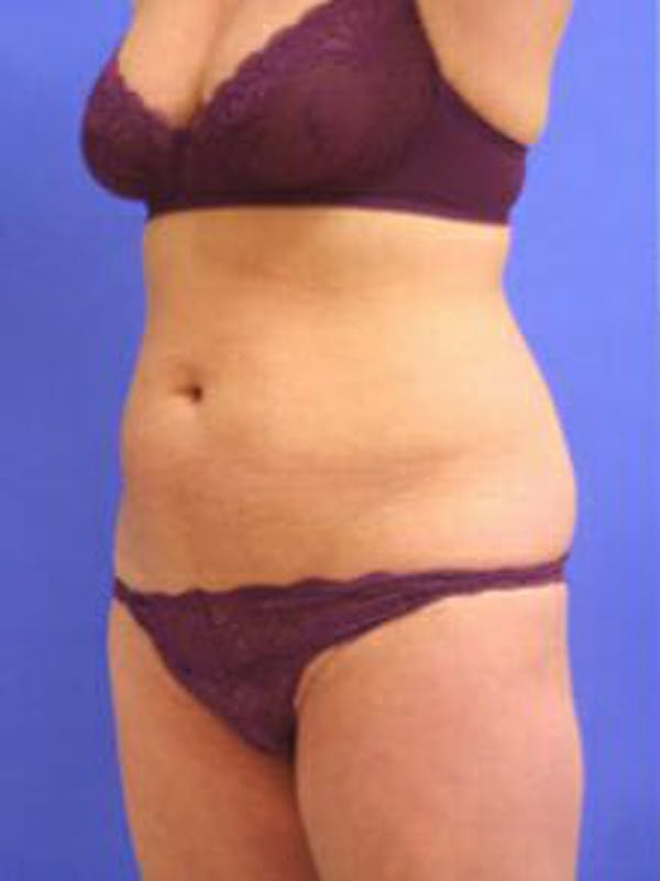 Female Liposuction Gallery - Patient 9605550 - Image 3