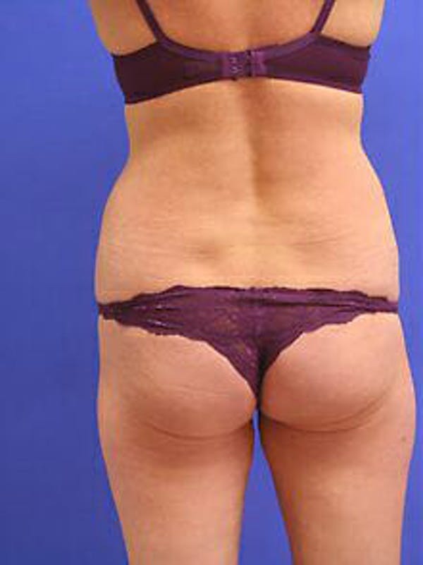 Female Liposuction Gallery - Patient 9605550 - Image 5