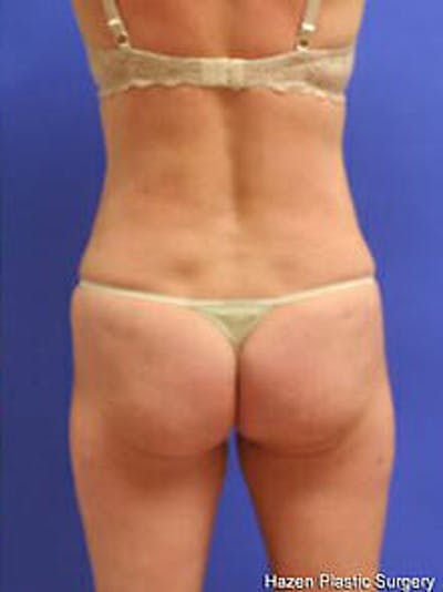 Female Liposuction Gallery - Patient 9605550 - Image 6