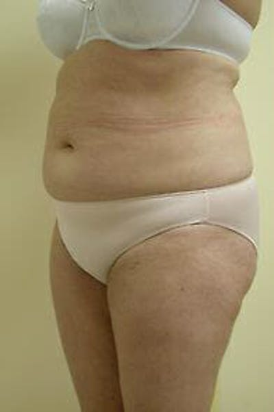 Female Liposuction Gallery - Patient 9605553 - Image 1