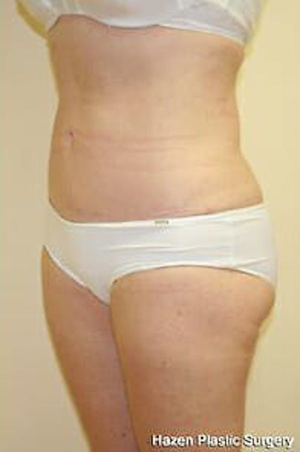 Female Liposuction Gallery - Patient 9605553 - Image 2