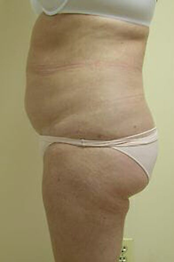 Female Liposuction Gallery - Patient 9605553 - Image 3