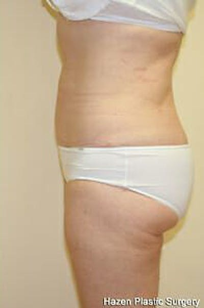 Female Liposuction Gallery - Patient 9605553 - Image 4