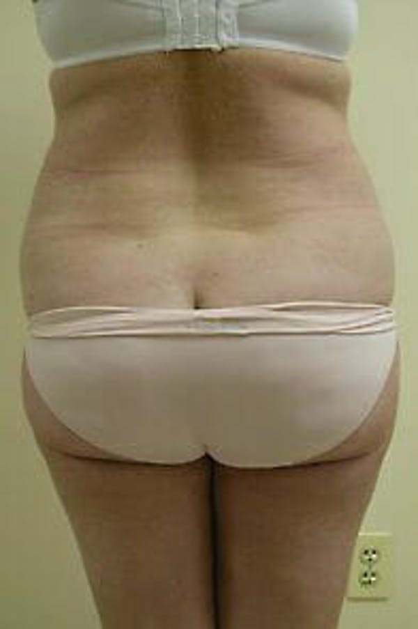 Female Liposuction Gallery - Patient 9605553 - Image 5