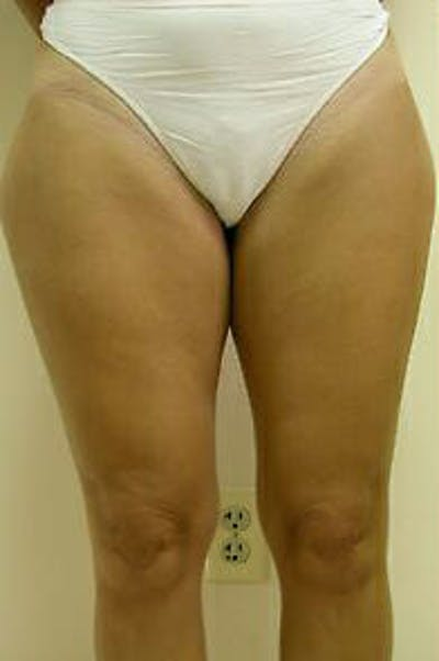 Female Liposuction Gallery - Patient 9605557 - Image 1