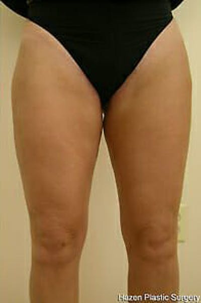 Female Liposuction Gallery - Patient 9605557 - Image 2