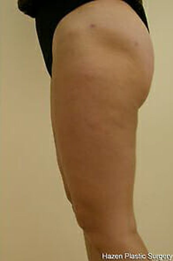 Female Liposuction Gallery - Patient 9605557 - Image 3