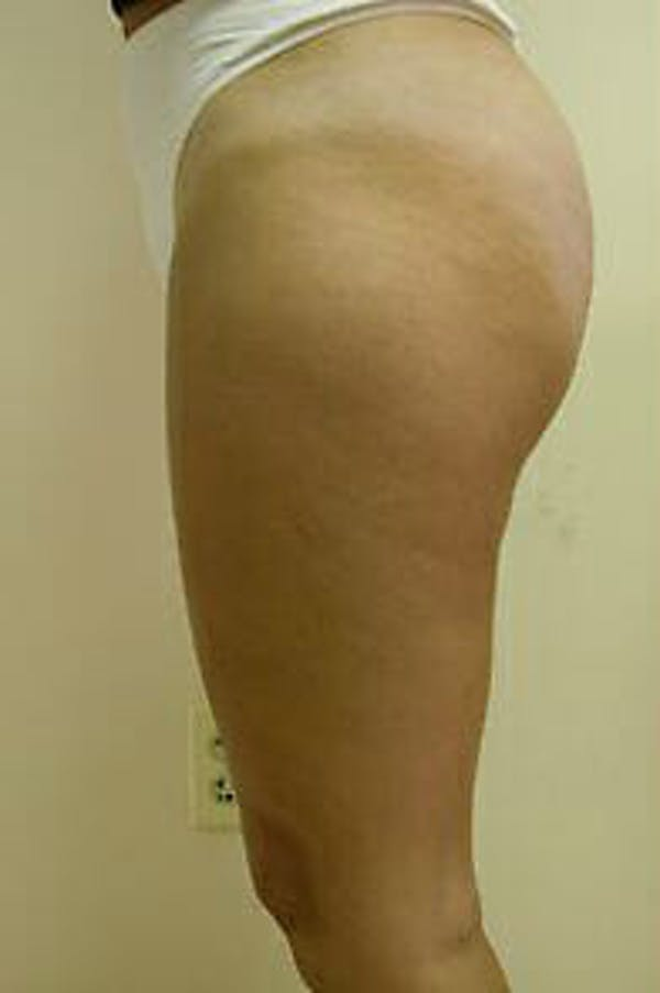 Female Liposuction Gallery - Patient 9605557 - Image 4