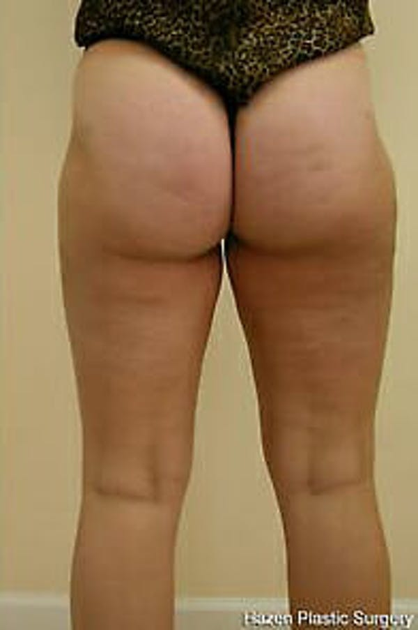 Female Liposuction Gallery - Patient 9605557 - Image 5