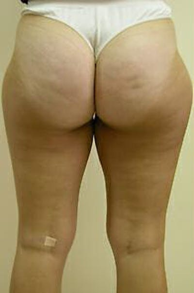 Female Liposuction Gallery - Patient 9605557 - Image 6