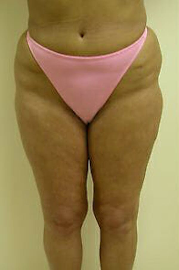 Female Liposuction Gallery - Patient 9605559 - Image 1