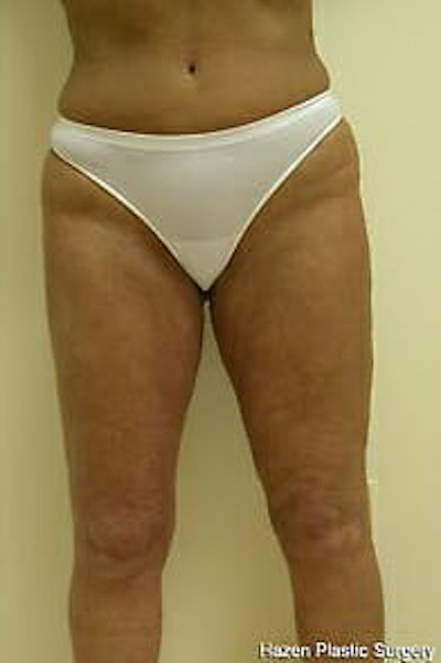 Female Liposuction Gallery - Patient 9605559 - Image 2