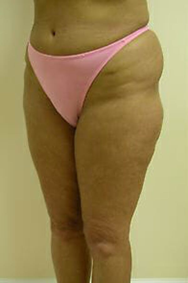 Female Liposuction Gallery - Patient 9605559 - Image 3