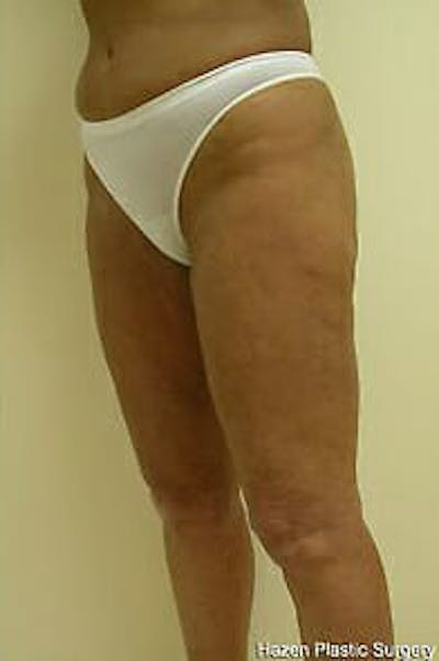 Female Liposuction Gallery - Patient 9605559 - Image 4