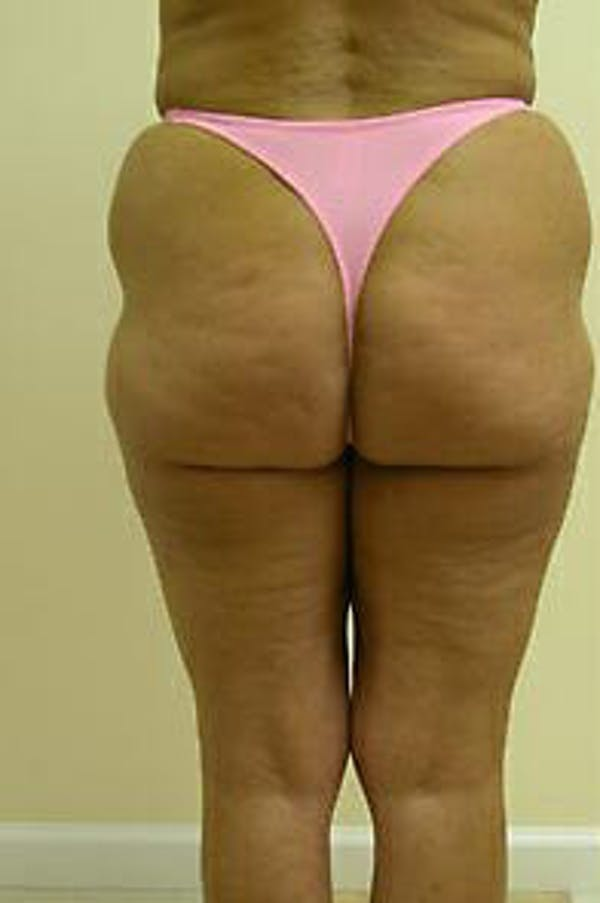 Female Liposuction Gallery - Patient 9605559 - Image 5