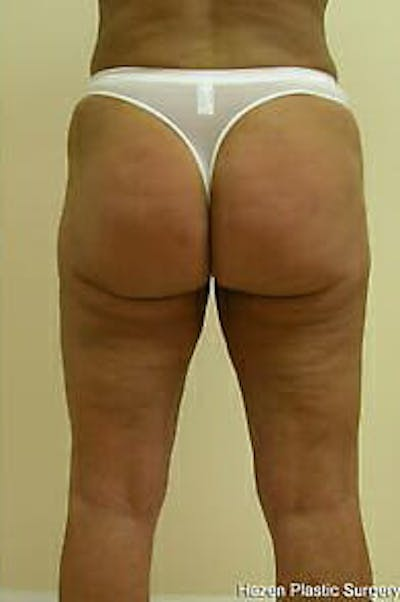 Female Liposuction Gallery - Patient 9605559 - Image 6
